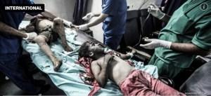 Crianças feridas após bombardeio israelense em Gaza. O Brasil é cúmplice desta barbárie.